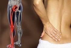 Sciatic Pain, Sciatic Nerve, Nerve Pain, Douleur Nerf, Si Joint, Back Pain Exercises, Beauty Tips For Women, Low Back Pain, Arm Workouts