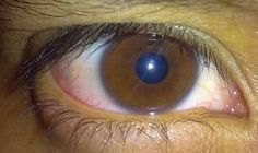Brown eyes are the most common eye color in the world with over 55% of the world's population having brown eyes. Brown eye color is a domina...