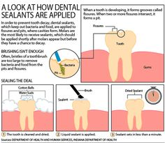 How #Dental #Sealants are applied