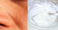 Αφαιρέστε Γρήγορα Μεγάλους, Λιπαρούς Πόρους με Αυτά τα Φυσικά Συστατικά!: http://biologikaorganikaproionta.com/health/232104/