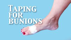 Taping for Bunion Pain Relief NOW!