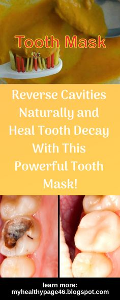 Weve been led to believe that whenever we experience a tooth decay or cavity we can reduce the damage by filling it with a synthetic material. However the truth is that tooth decay can be prevented and reversed with proper nutrition. Natural Cavity Remedy, Natural Remedies, Dental Health, Oral Health, Health Care, What Causes Tooth Decay, Cure Tooth Decay, Reverse Cavities, Remedies For Tooth Ache