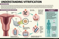 Infographic on Vitrification, designed for Mint Newspaper. Pregnancy Test, Pregnancy Workout, Advantages Of Breastfeeding, Freezing Your Eggs, In Vitro Fertilization, Information Architecture, At Home Workouts, Infographic, Frozen