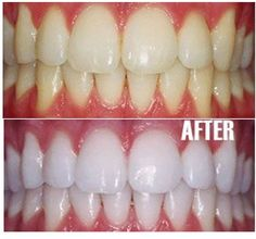 Brush your teeth with coconut oil. No need for acid or abrasive powder. Just floss and coconut oil. Even oil pulling is good. It kills all bacteria in my mouth and tastes a lot better than those chemical laden toothpastes. It is an age old technique detoxify and clean teeth and gums. Not only this but it will removing harmful bacteria and improve gums. Do it regularly and you will get the desired results.
