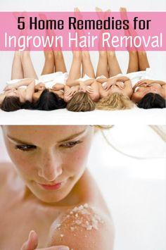 5 Ingrown Hair Removal Home Remedies !