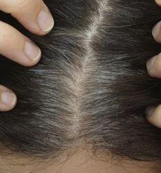 Jardines pequeños con encanto - Las nuevas tendencias para 2021 - Prevent Grey Hair, Premature Grey Hair, Wheatgrass Powder, Graves Disease, Hair Starting, Take A Shot, Wheat Grass, Wet Hair, Vitamins And Minerals