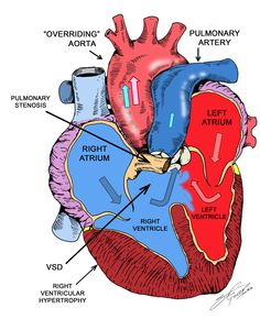 Tetralogy of Fallot (TOF) - think DROP - child drops to floor or squats -- Defect septal, Right Ventricular Hypertrophy, overriding aorta, Pulmonary stenosis