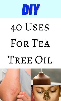 Young Living Oils, Young Living Essential Oils, Tea Tree Oil Uses, Essential Oil Uses, Health And Beauty Tips, Natural Living, Doterra, Diy Beauty, Natural Health