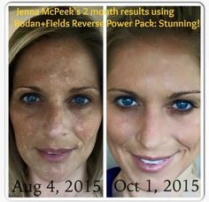 """Jenna shared these photos after consistently using Rodan + Fields clinical skincare since August of this year. She said """"since August 12th I have not missed one day of washing my face (day and night). I am blown away!"""" Email me at jsneill@zoominternet.net to learn about our Preferred Customer Perks!"""