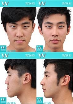 The best plastic surgery clinic in Korea, Wonjin Beauty Medical Group Korean Plastic Surgery, Head Anatomy, Face Yoga, Face Contouring, Body Motivation, Korean Skincare, Getting Old, Good Skin, Beauty Secrets