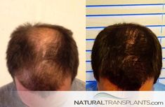 Hair Growth Before And After Hair Transplant