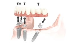 What Is The After Care Procedure For All On 4? The All on 4 prosthesis cannot be removed and is one continuous fixed bridge. You will be given a high-powered water pik, which delivers compressed air combined with water to clean in between your gum and the prosthesis twice daily.