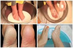 Their hygiene and condition are very important and indicate your personal hygiene. The excuse of many people for not treating the feet is that the pedicure is a time consuming and expensive treatment. Cracked Feet, Cracked Skin, Diy Pedicure, Homemade Pedicure, Pedicure Soak, Home Health Remedies, Foot Soak, Skin Tag, Personal Hygiene