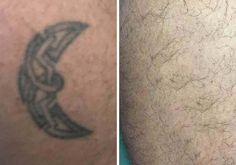 23 Best Tattoo Removal Gallery images in 2017 | Tattoos