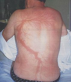 Unknown man with a Lichtenberg scar left by lightning. Such scars usually vanish in a few months. In DMS, Elizabeth has one too, of similar extension, but permanent. And shaped somewhat like a fractal dragon because I can't make up my mind. (As it happens, Lichtenberg figures have some kind of fractal dimension.)