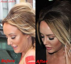 Charlotte Crosby Nose Job Plastic Surgery Before And After