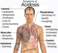 Acid_reflux_sore_throat - http://viziovht510.com/100370/fashion/acid_reflux_sore_throat