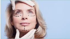 Dr. Myint on Facelifts
