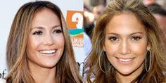 Resultado de imagem para after and before famous