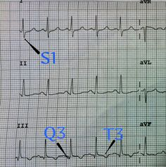 S1Q3T3 EKG Classic Example of This Pattern's Finding In Pulmonary Embolism.