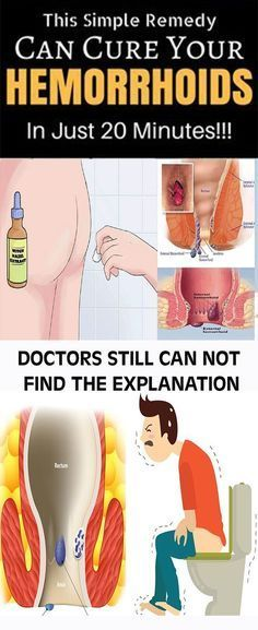 DOCTORS STILL CAN NOT FIND THE EXPLANATION: THIS SIMPLE REMEDY CAN CURE YOUR HEMORRHOIDS IN JUST 20 MINUTES ! #fitness #beauty #hair #workout #health #diy #skin #Pore #skincare #skintags #skintagremover #facemask #DIY #workout #womenproblems #haircare #teethcare #homerecipe