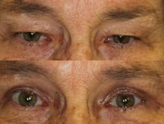 Before and After Upper Blepharoplasty Eyelid Surgery.  John R. Burroughs, MD PC Surgery of the Eyelids, Face, and Orbits www.drjohnburroughs.com 719-473-8801 Colorado Springs, Canon City, Pueblo
