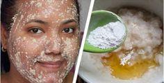 Peeling facial é uma das técnicas mais procuradas entre os tratamentos de beleza.Trata-se de um processo estético à base de ácidos para remover camadas danificadas da pele.