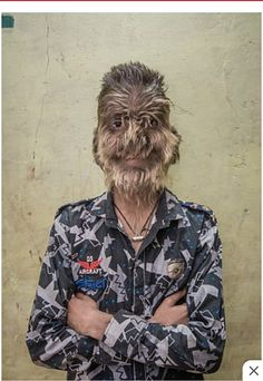 The youngsters in the Costa del Sol have developed hypertrichosis - hair growth throughout their bodies - after taking medication tainted with minoxidil, an alopecia remedy. Hair Remedies For Growth, Hair Growth, Mexican Men, Extreme Hair, Stop Hair Loss, Coarse Hair, Medical Help, Genetics, Medicine