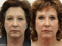 www.drdarm.com - Eyelids surgery (Blepharoplasty) at Dr. Darm Aesthetic Medicine.  Each patient is unique and results may not occur for all patients. These photos are of an actual patient of our practice who has provided consent to display their pictures online.  If you like the results you see here, request a free consultation/call 503-697-9777 to learn more about how this procedure can help you achieve your ideal appearance.