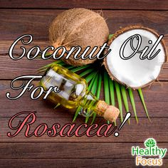 Coconut oil for Rosacea- kills mites, and fights bacteria which cause rosacea flare ups. Coconut oil also helps healing skin with moisturizers and Vitamin E