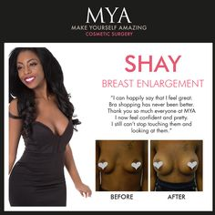 Breast Enlargement inspiration from the beautiful #MYAGirl Shay    #MYA #CosmeticSurgery #BreastEnlargement #body #inspiration