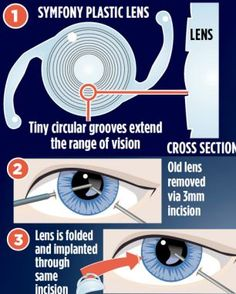 Want to get rid of those reading glasses? A new procedure can help you do just that!