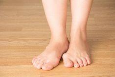 Descoperă 5 remedii cu plante pentru monturi - Doza de Sănătate Varicose Vein Remedy, Varicose Veins, Bunion Remedies, Get Rid Of Bunions, Bunion Surgery, Timing Is Everything, Feet Care, Easy Workouts, Comfortable Shoes