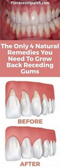 Home Remedies The Only 4 Natural Remedies You Need To Grow Back Receding Gums - The Healthy - There are a lot of reasons why gums recede and it can become quite a health problem if this happens. If you are experiencing receding gums then you have found … Teeth Health, Healthy Teeth, Dental Health, Oral Health, Gum Health, Dental Care, Kidney Health, Healthy Fats, Natural Home Remedies