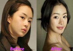 Seo Woo before and after plastic surgery Although she has never discussed it publicly, it seems likely that the young Korean beauty has benefited from the blade of an experienced cosmetic surgeon's scalpel. The most noticeable change is the appearance of Seo Woo's eyes. They appear much larger and less slanted than they were in the past. This is achieved through a popular surgery known as blepharoplasty, which other celebrities such as Julie Chen have admitted to having done to get a more…
