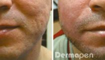 The Dermapen micro needling device delivery provides unparalleled collagen induction therapy via fractional delivery of needles into the epi...