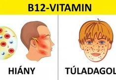6 hasznos tudnivaló a vitaminbevitelről