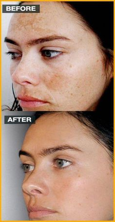 The best way to Remove Darkish Spots From Facial area Within two Times - Brown Spots Between Teeth - Black Spots On Face, Brown Spots On Hands, Age Spots On Face, Dark Spots, How To Get Rid, How To Remove, Spots On Forehead, Sunspots On Face, Portrait