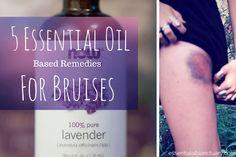 5+DIY+Essential+Oil+Based+Remedies+for+Bruises
