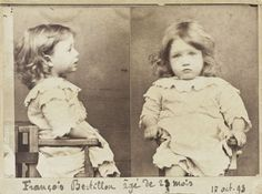 French Mug shot of François Bertillon, 23 months. Crime: Gluttony, nibbling all the pears from a basket, by Alphonse Bertillon, October 17, 1893.