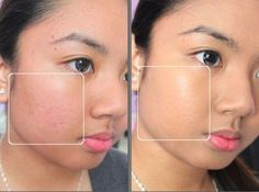 before and after uneven skin tone