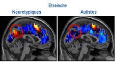 Percée : diagnostiquer l'autisme (de haut niveau) à partir d'images cérébrales liées aux pensées sociales