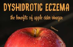 The Benefits of Apple Cider Vinegar for Dyshidrotic Eczema