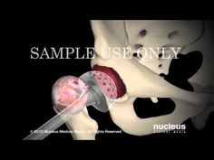 Minimally Invasive Direct Anterior Total Hip Replacement (THR) Animation Joint Replacement, Peripheral Neuropathy, Physician Assistant, Hip Hip, 3d Animation, Human Anatomy, Pta, Physical Therapy, Biology
