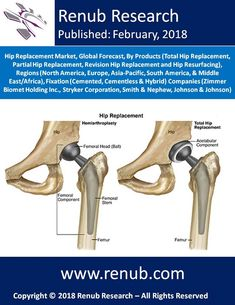 By the end of the year 2024, Global Hip Replacement market will be more than US$ 6 Billion. Hip replacement is a surgical procedure in which an artificial prosthetic implant is placed in Hip joints due to infection occurred by diseases or by hip fractures. This report also lets you know in details about the Hybrid Hip Replacement Market, Cementless Hip Replacement Market, and Cemented Hip Replacement Market.