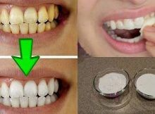 Whiten Your Yellow Teeth In Less Than 2 Minutes (Guaranteed! Whiten Your Yellow Teeth In Less Than 2 Minutes) Yellow teeth are quite an embarrassing Teeth Whitening Remedies, Natural Teeth Whitening, Natural Toothpaste, Homemade Toothpaste, Home Remedies, Natural Remedies, White Teeth, Teeth Cleaning, Oral Health