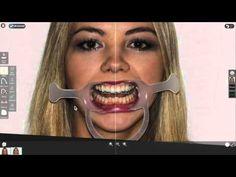 Smile Designer Pro Intro Webinar - YouTube