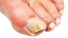 What Causes Toenail Fungus? How to Prevent Onychomycosis, or Crusty … – Best Beauty What Causes Toenail Fungus? How to Prevent Onychomycosis, or Crusty … What Causes Toenail Fungus? How to Prevent Onychomycosis, or Crusty … What Causes Toenail Fungus, Toenail Fungus Remedies, Toenail Fungus Treatment, Nail Treatment, Herbal Remedies, Home Remedies, Natural Remedies, Toe Fungus, Health Care