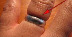 Hij gebruikte DIT om de ring van zijn vinger af te krijgen. Deze truc is zo simpel ik wou dat ik dit eerder wist. Geweldig!