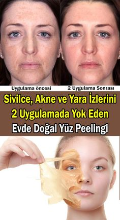 How to make face peeling at home? Acne, acne and scar marks . How to make face peeling at home? Face Peel At Home, Face Peeling, Natural Hair Highlights, Pressed Natural Hair, Face Mapping, Acne Causes, Wie Macht Man, Anti Ride, Body Organs